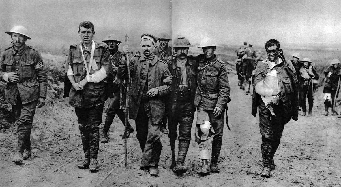Ranni angielscy żołnierze wracają na tyły. Wojna przyzwyczaiła ludzkość do widoku krwi i cierpienia. Bezwzględne zadawanie bólu i dążenie do unicestwienia przeciwnika stały się uznaną formą rozwiązywania konfliktów. Społeczeństwo, które przeżyło Wielką Wojnę, tworzyć miało następną epokę.